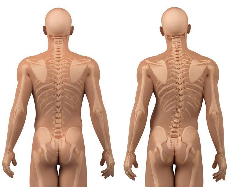 Scoliose : les différents types selon l'origine et la forme