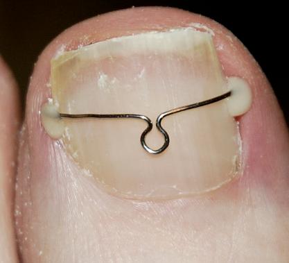 Orthonyxie à agrafes