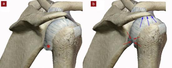 vue postéro-latérale d'une épaule droite. * : capsule articulaire postéro-inférieure souple. La tête humérale reste centrée lors de l'élévation du bras ; b : vue postéro-latérale d'une épaule droite. Rétraction capsulaire postéro-inférieure (flèches rouges) et ascension tête humérale avec conflit secondaire sous-acromio-deltoïdien (flèches noires).