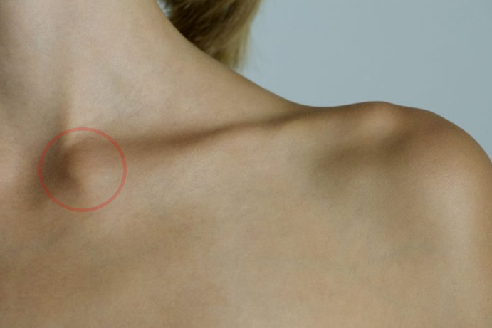 Luxations sternoclaviculaires