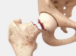 Fracture du col du fémur