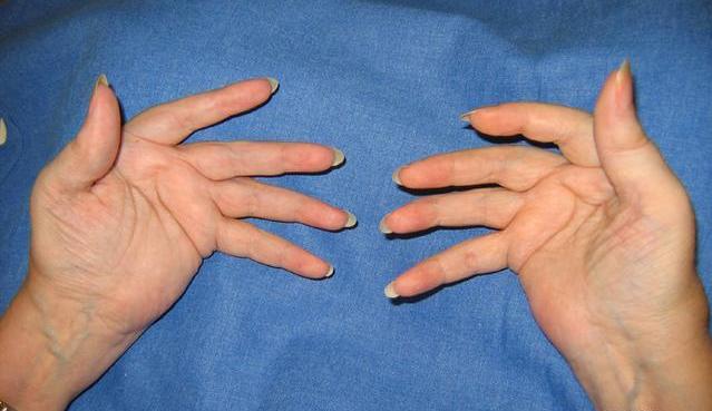 polyarthrite rhumatoïde