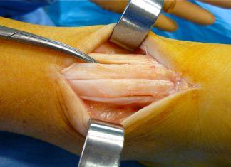 Peignage du tendon d'Achille