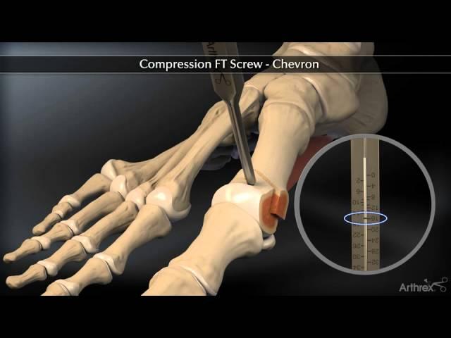 Ostéotomie en chevron pour traiter l'hallux valgus