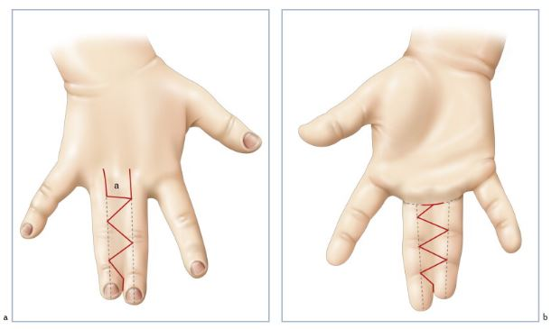 syndactylie