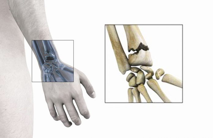 fracture du poignet