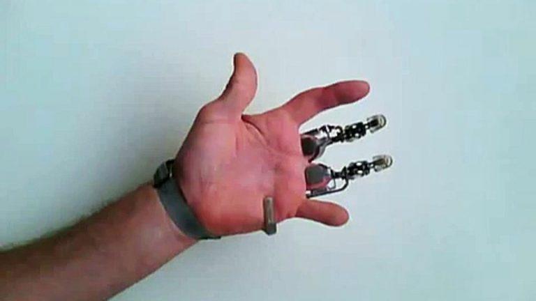 La prothèse X-Fingers : les premiers doigts artificiels