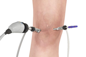 arthroscopie du genou