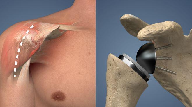 prothèse épaule