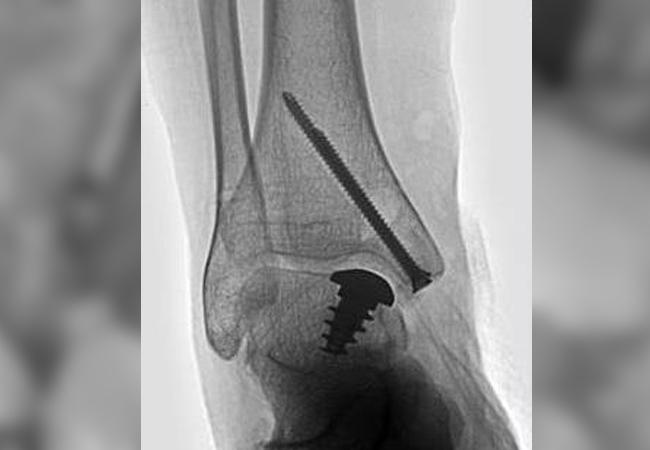 HemiCAP Talus : système de resurfaçage articulaire de la cheville