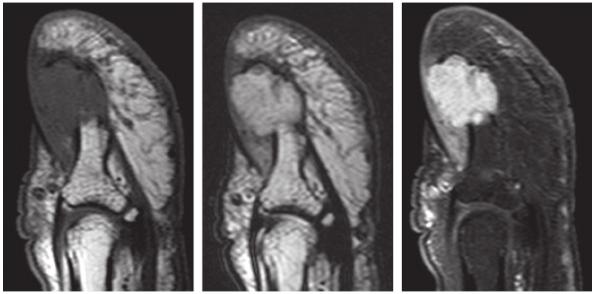 IRM d'une tumeur glomique.