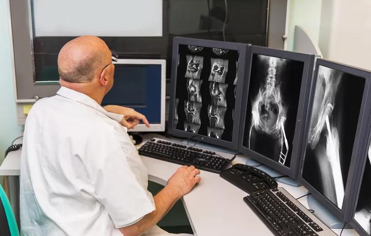 Tumeurs osseuses bénignes : causes, signes, et traitement