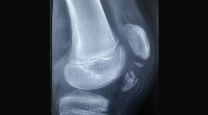 avulsion de la tubérosité tibiale antérieure