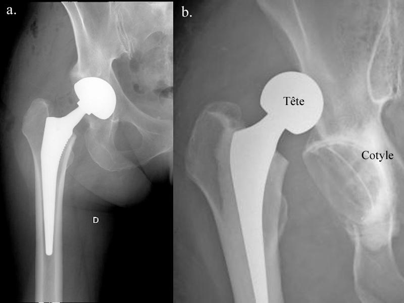 Luxation prothèse totale de la hanche